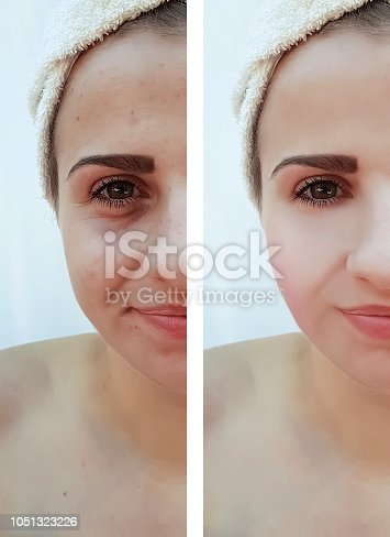 istock beautiful girl wrinkles acne on the face before the procedure 1051323226