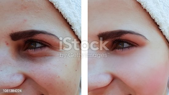 istock beautiful girl wrinkles acne on the face before the procedures 1051384224