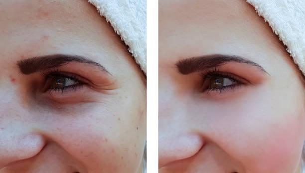 vacker flicka rynkor akne i ansiktet innan förfarandena - filler swollen bildbanksfoton och bilder