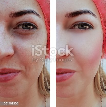 istock beautiful girl wrinkles acne on the face before the procedures 1051409320