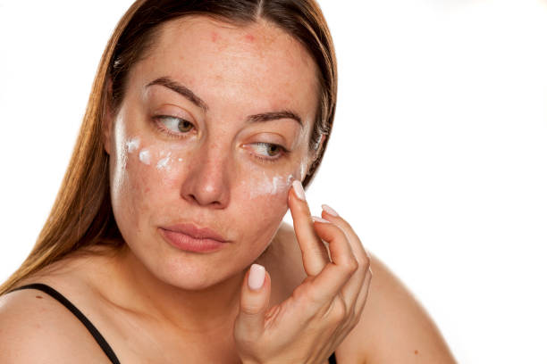 beautiful middle-aged woman applying moisturizer on her face on white background stock photo