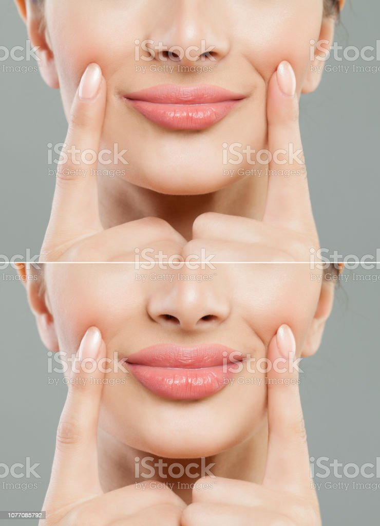 Beautiful Pink Lips After Filler Injection Collagen To