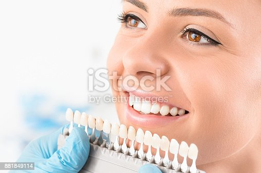 istock Beautiful smile and white teeth of a young woman. 881849114