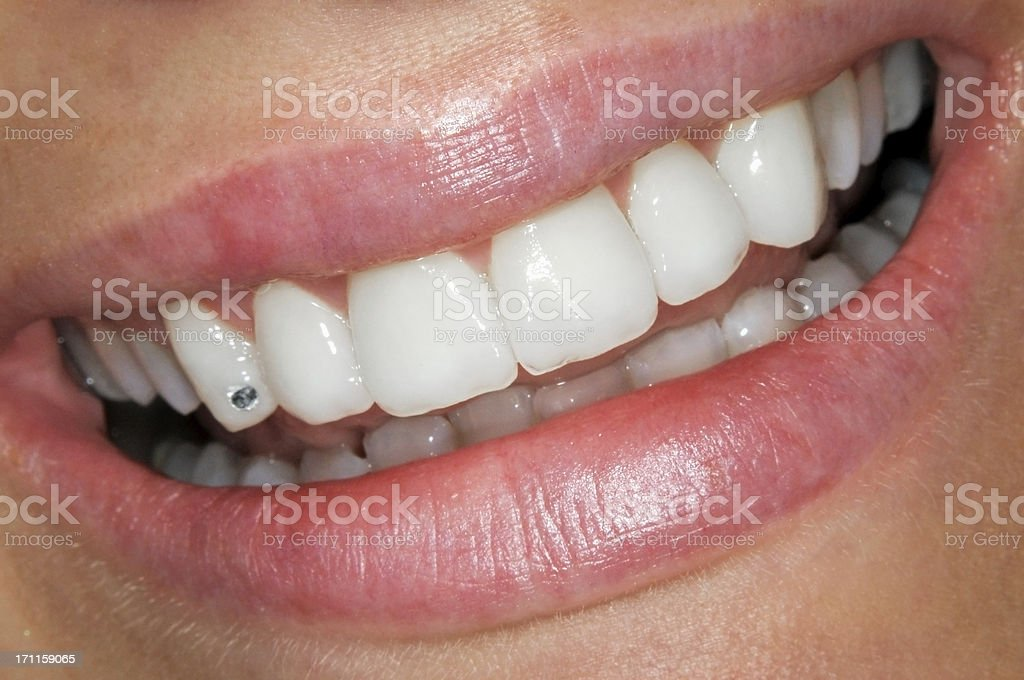 Beautiful smile with Circon stock photo
