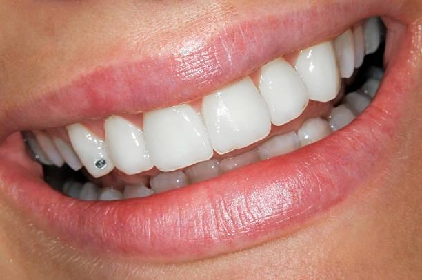 Schönes Lächeln mit Circon – Foto