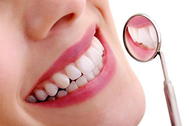 beautiful smile with dental mirror - tanden bleken stockfoto's en -beelden