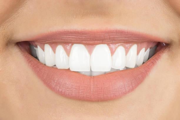 schönes lächeln mit weißen zähnen - zahnweiss stock-fotos und bilder