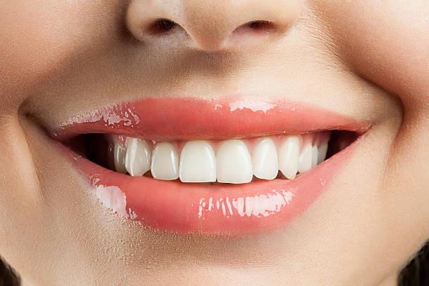 Beau sourire avec des dents withe - Photo