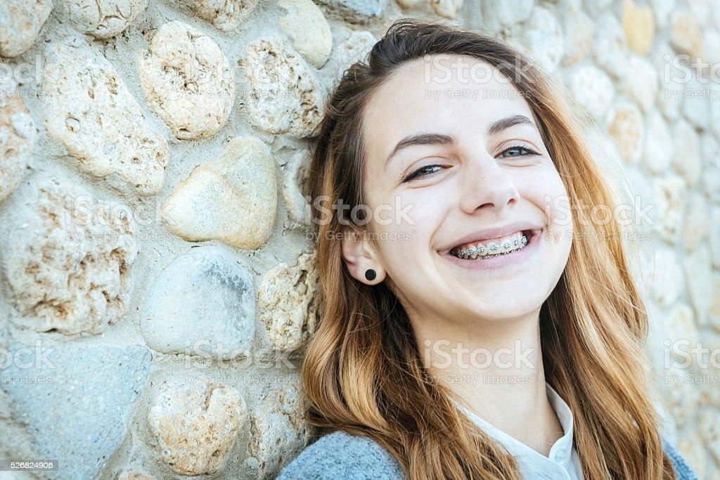 Hermosa Chica sonriente con retén de dientes. - foto de stock