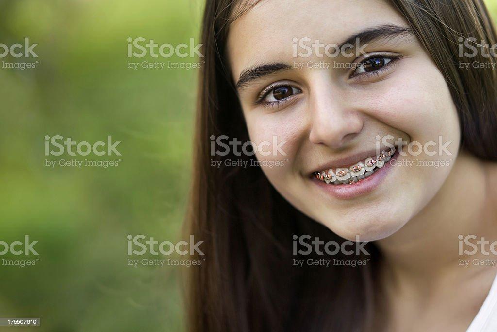 Beautiful teenage girl with braces royalty-free stock photo