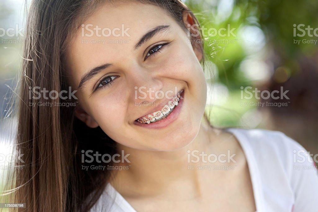 Beautiful teenage girl with braces stock photo