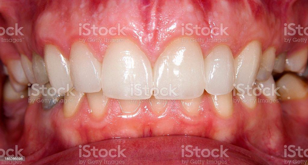 Beautiful teeth stock photo