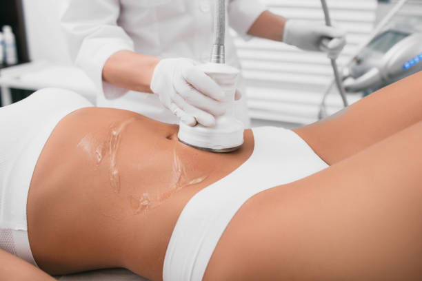 Beautiful woman having cavitation , cellulite treatment, on her belly at beauty clinic Beautiful woman having cavitation, procedure removing cellulite on her belly at beauty clinic liposuction stock pictures, royalty-free photos & images