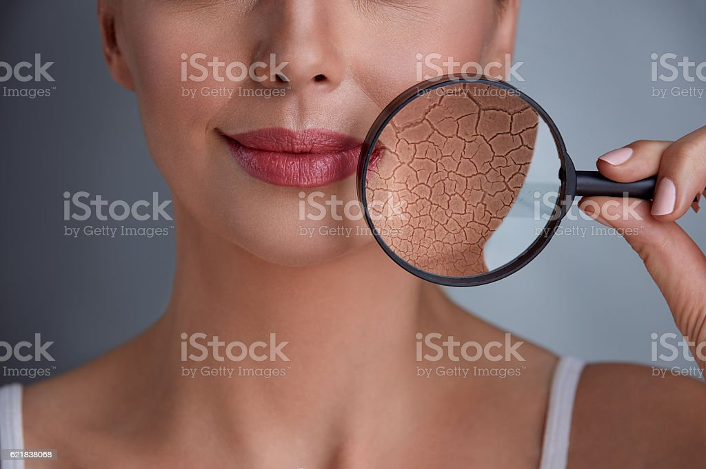 beautiful woman with a problem on skin stock photo