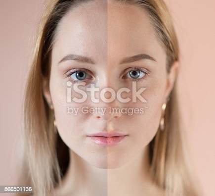 istock Beautiful woman with blue eyes. 866501136