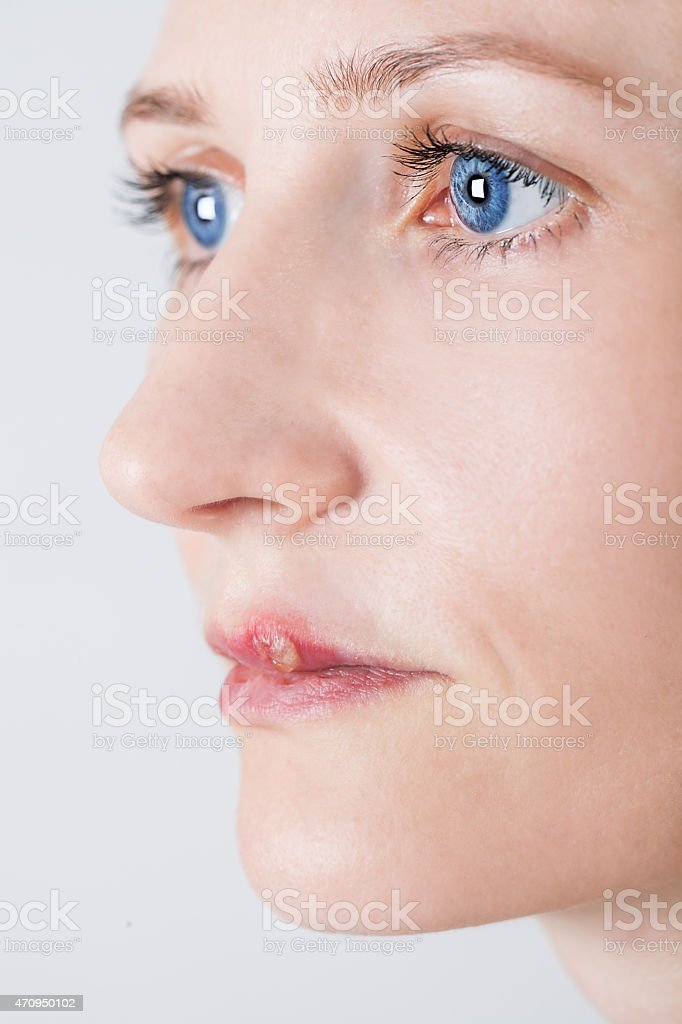 beautiful woman with lips virus infected herpes stock photo
