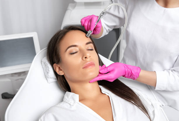 Beautiful woman with long hair, with clean fresh skin.Cosmetologist makes  procedure microdermabrasion on the face. Women's cosmetology in the beauty salon. stock photo