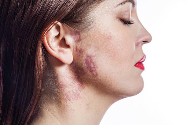 schöne frau mit port wine-test (birthmark) auf ihr gesicht. - leberfleck hautmerkmal stock-fotos und bilder