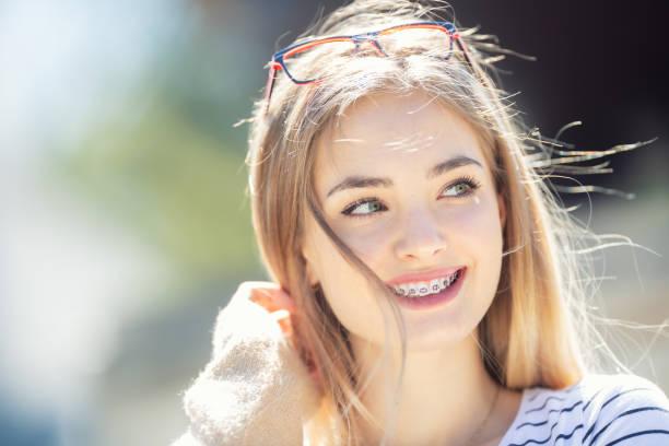 красивая молодая блондинка девушка носить зубные скобки, улыбаясь и глядя в сторону. - white background стоковые фото и изображения