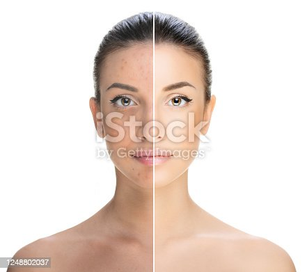 istock beautiful young brunette woman, beauty concept, bad condition and perfect condition 1248802037