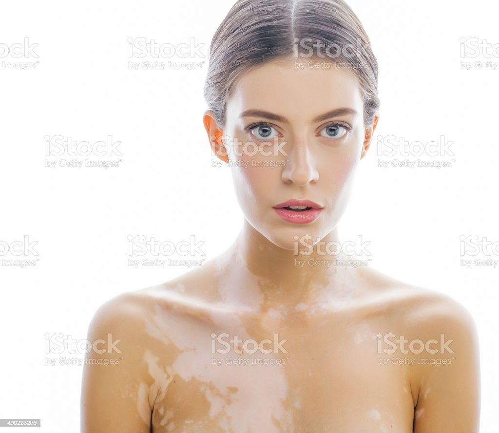 beautiful young brunette woman with vitiligo disease close up isolated stock photo