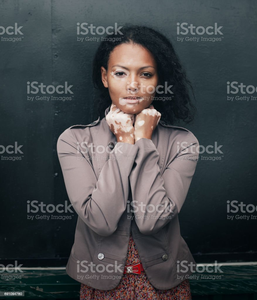 beautiful young brunette woman with vitiligo disease stock photo