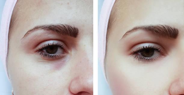 vacker ung flicka akne, blåmärken under ögonen före och efter förfaranden - filler swollen bildbanksfoton och bilder