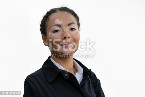 A beautiful young girl of African ethnicity with vitiligo isolated on the white background.