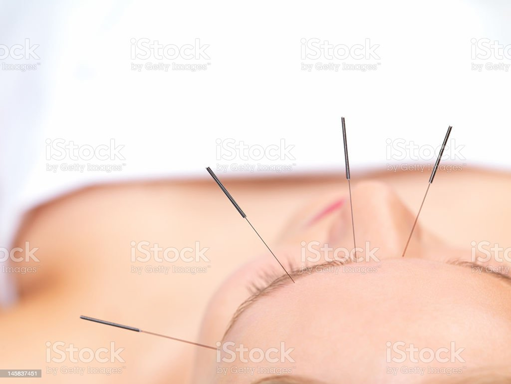Beautiful young woman getting acupuncture therapy stock photo
