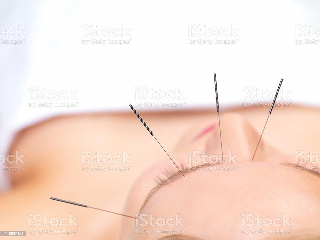 Schöne Junge Frau zu Akupunktur-Therapie – Foto