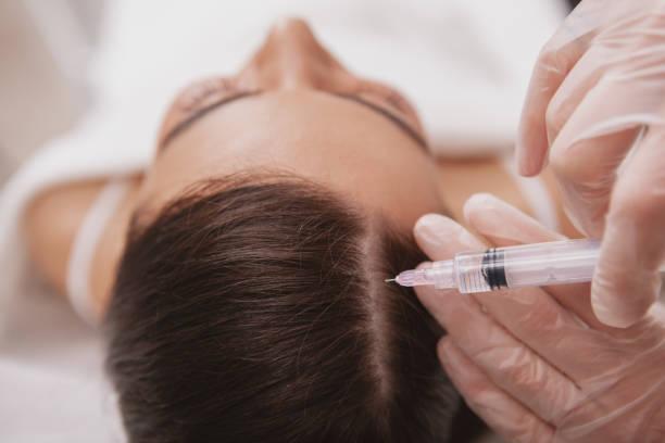 mooie jonge vrouw krijgt gezichtsverzorging behandeling - hair grow cyclus stockfoto's en -beelden