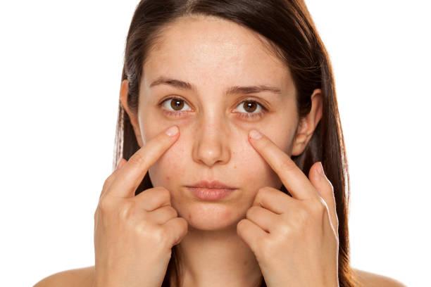 beautiful young woman touch her face under eyes on white background - poniżej zdjęcia i obrazy z banku zdjęć