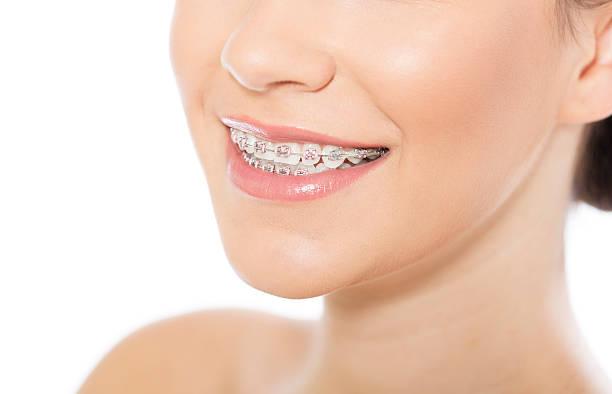 Schöne Junge Frau mit Zahnspange – Foto