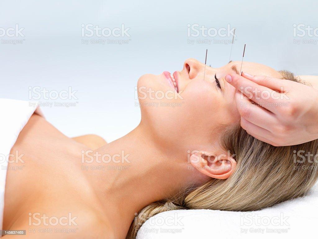 Schöne Junge Frau mit geschlossenen Augen bekommen Akupunktur-Therapie – Foto