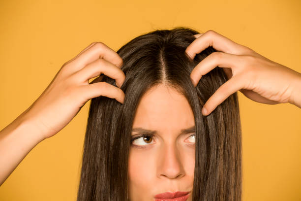 Beautiful young woman with itchy scalp on yellow background stock photo