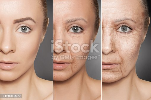 istock Beauty concept skin aging, anti-aging procedures on caucasian woman face 1128919977