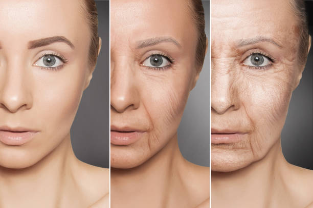 Beauty concept skin aging, anti-aging procedures on caucasian woman face anti aging therapy, skin treatment antiaging stock pictures, royalty-free photos & images