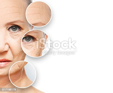 istock beauty concept skin aging. anti-aging procedures, rejuvenation, 517198179