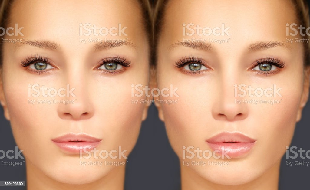 Beauty injections.Lip augmentation stock photo
