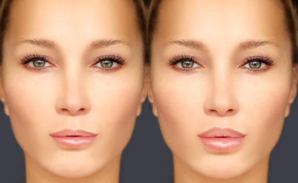Beauty injections.Lip augmentation stock photo