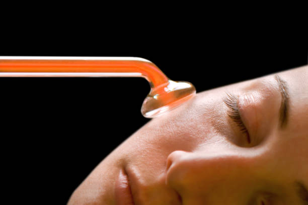 高周波赤外線スポットリムーバーによる顔皮膚の美容治療 ストックフォト