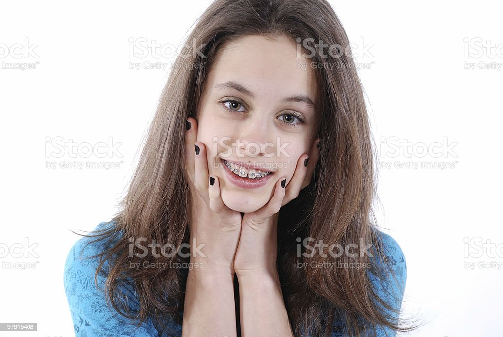 Beauty with braces royalty-free stock photo