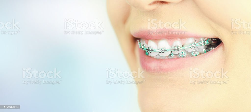 Beauty woman smile with ortodontic accessories. Orthodontics treatment. stock photo