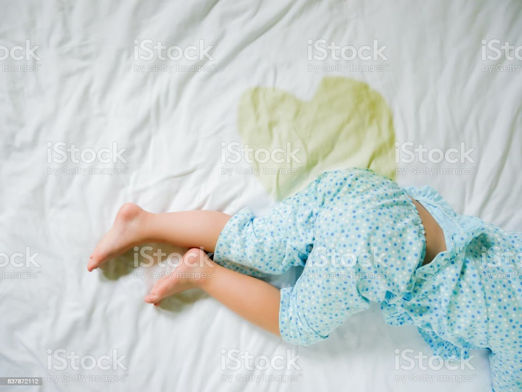 Bedwetting: Child pee on a mattress,Little girl feet and pee in bed sheet,Child development concept ,selected focus at wet on the bed stock photo
