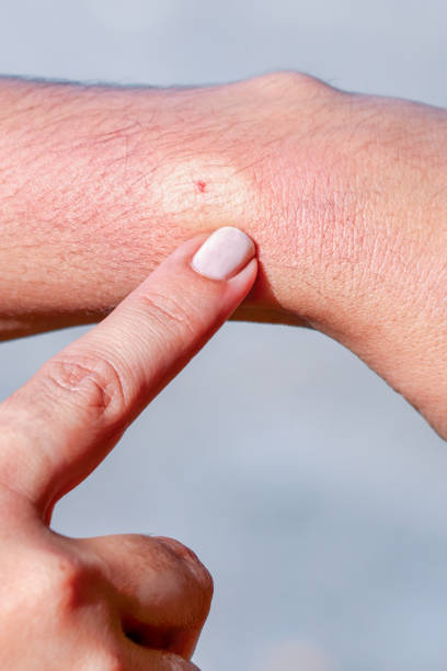 Bee sting on human skin Bee sting on human skin stinging stock pictures, royalty-free photos & images