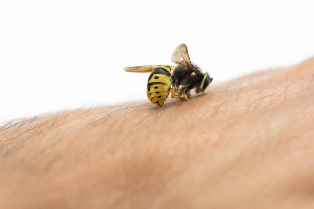 Bee stinging in human hand Bee stings in human skin, macro shot stinging stock pictures, royalty-free photos & images