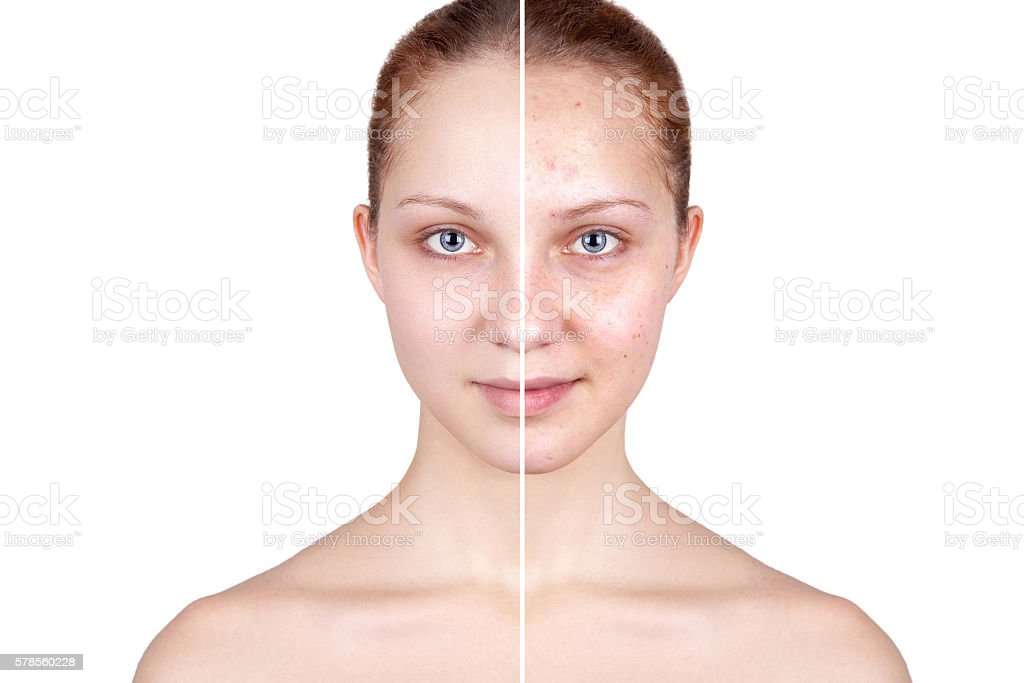 Befor and after treatment. stock photo
