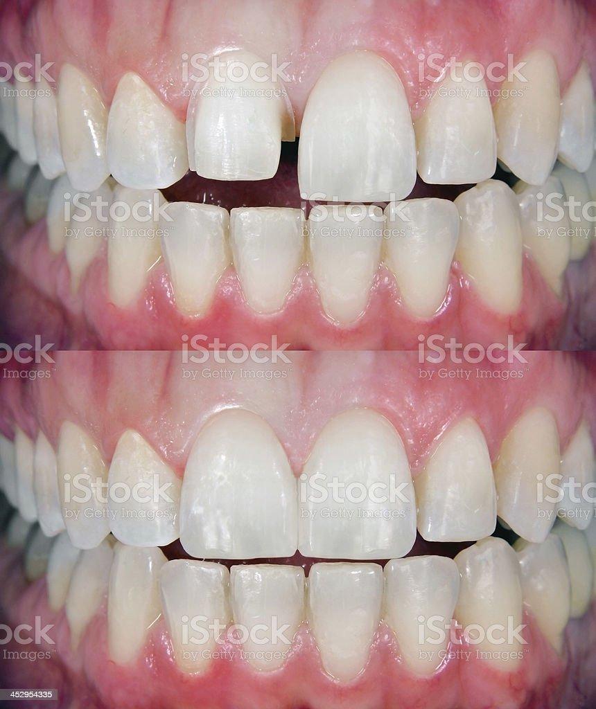 Before & After Dental Veneer stock photo