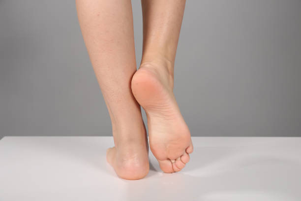 Before after feet care concept, female foot, chiropody isolated on white background Before after feet care concept, female foot, chiropody isolated on white background sole of foot stock pictures, royalty-free photos & images