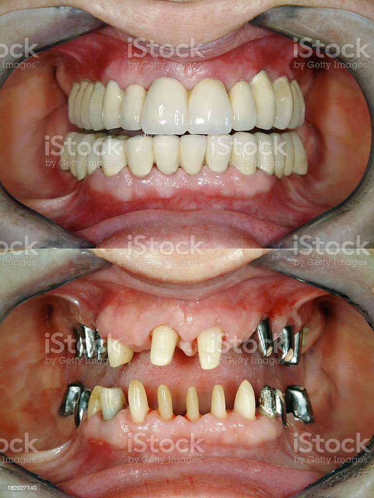 Before & After  Full Dental Reconstruction stock photo